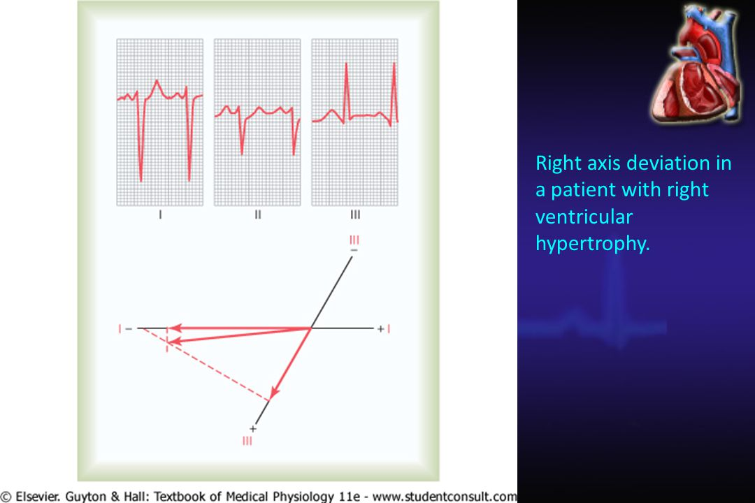 Right axis deviation in a patient with right ventricular hypertrophy.