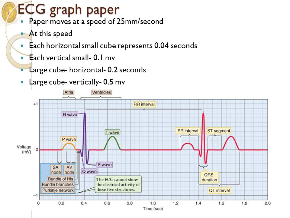 ECG+graph+paper+Paper+moves+at+a+speed+of+25mm%2Fsecond+At+this+speed electrocardiography ecg ekg ppt download ecg diagram at aneh.co