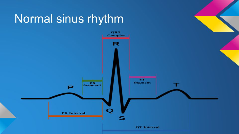 Normal sinus rhythm NSR - Rate BPM P-R = atrial depolarisation