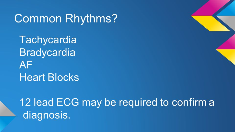 Common Rhythms Tachycardia Bradycardia AF Heart Blocks