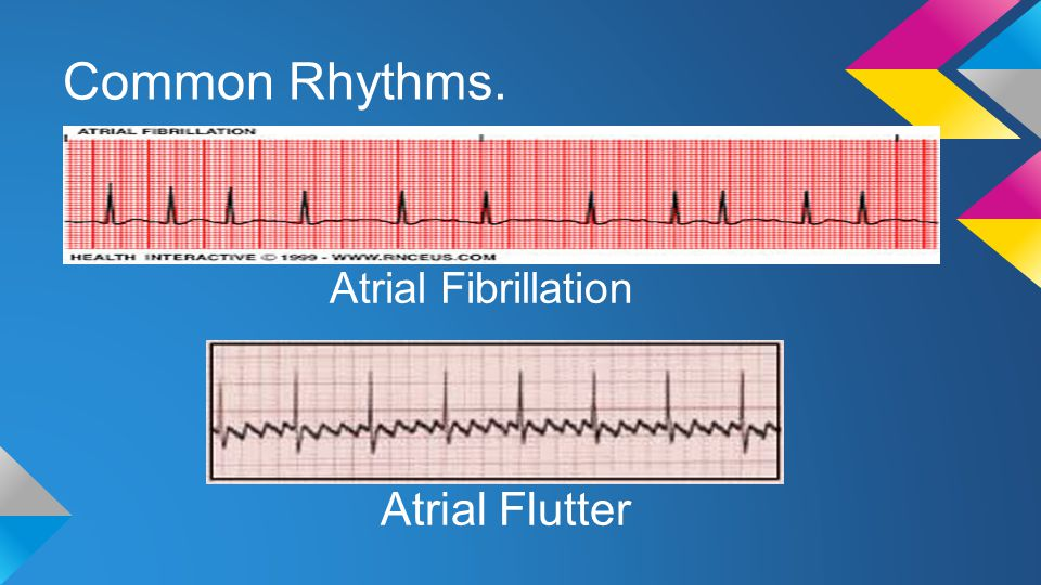 Common Rhythms. Atrial Fibrillation Atrial Flutter