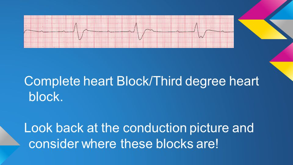 Complete heart Block/Third degree heart block.