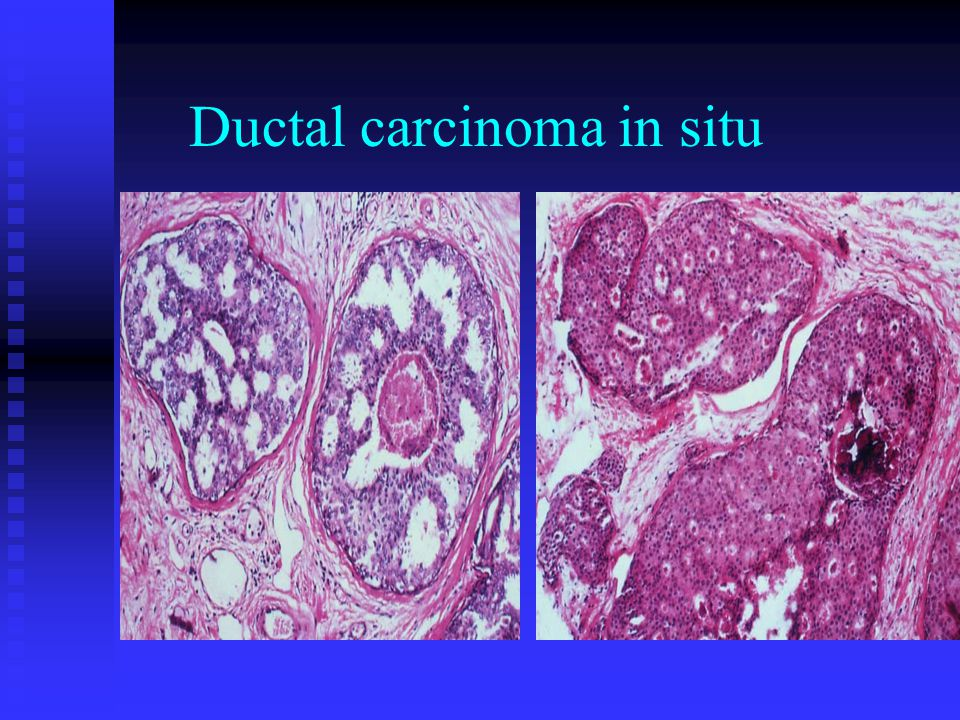 the treatment of a ductal carcinoma Ductal carcinoma in situ (dcis) is characterized by cancerous cells that are confined to the lining of the milk ducts and have not spread through the duct women with dcis are typically at higher risk for seeing their cancer return after treatment, although the chance of a recurrence is less than 30 percent.