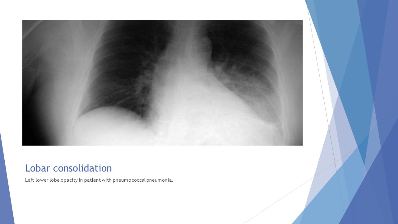 Lobar consolidation Left lower lobe opacity in patient with pneumococcal pneumonia.
