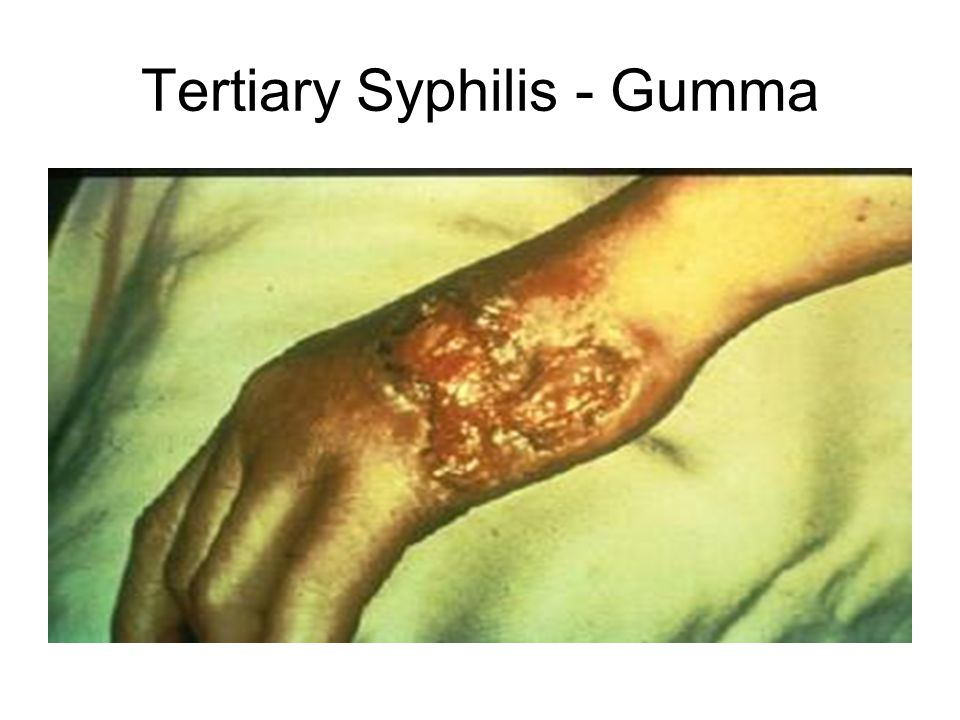 Neurosyphilis Gummas Related Keywords - Neurosyphilis ...
