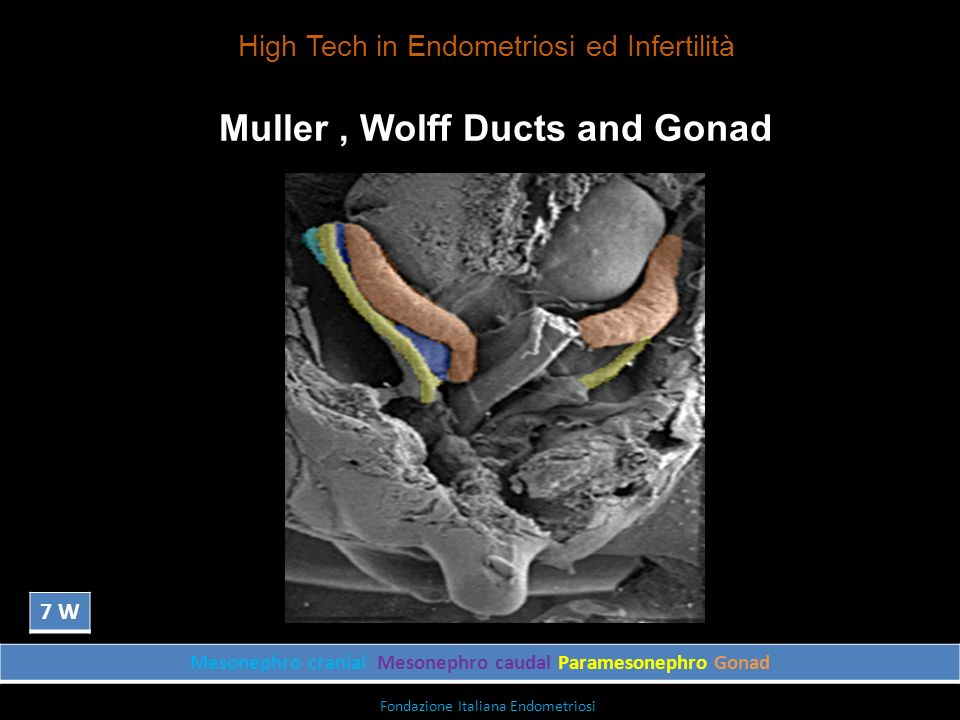 Muller , Wolff Ducts and Gonad