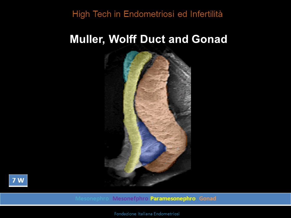 Muller, Wolff Duct and Gonad