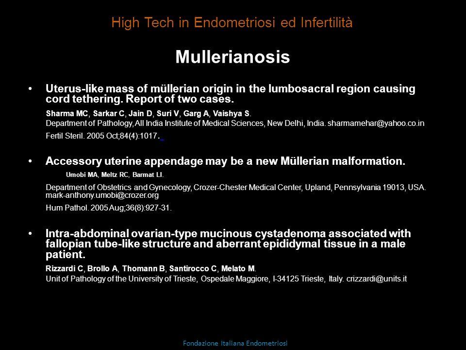 Mullerianosis High Tech in Endometriosi ed Infertilità