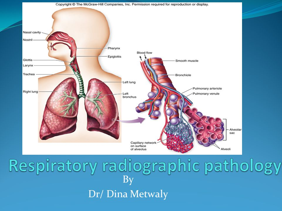 Respiratory Radiographic Pathology Ppt Video Online Download