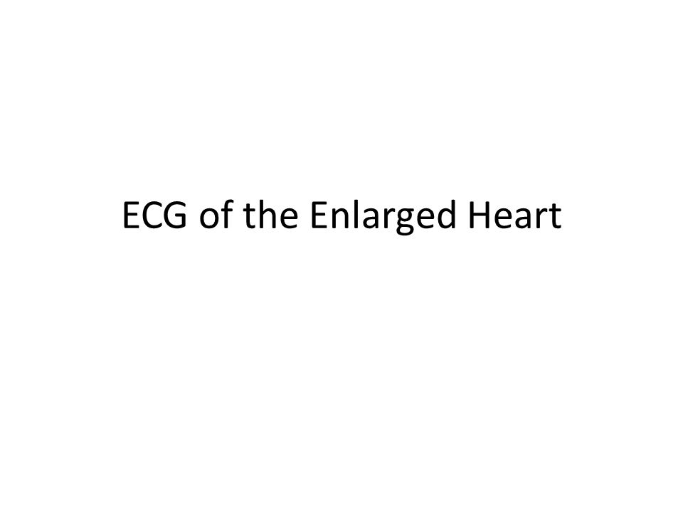 ECG of the Enlarged Heart
