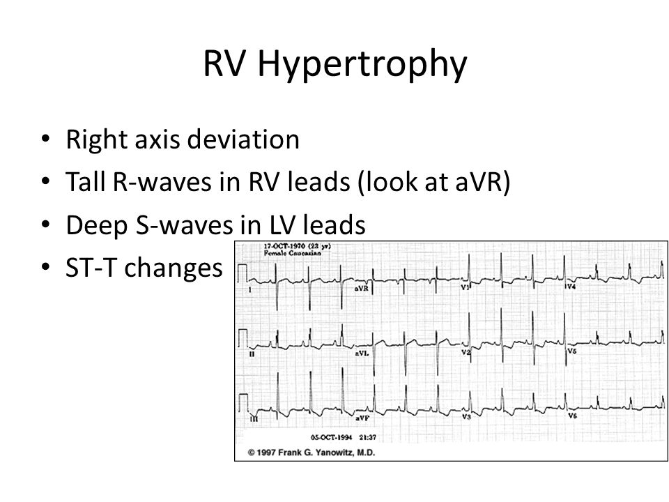RV Hypertrophy Right axis deviation