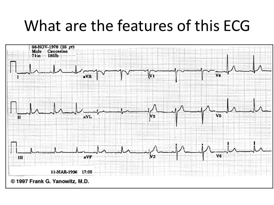 What are the features of this ECG