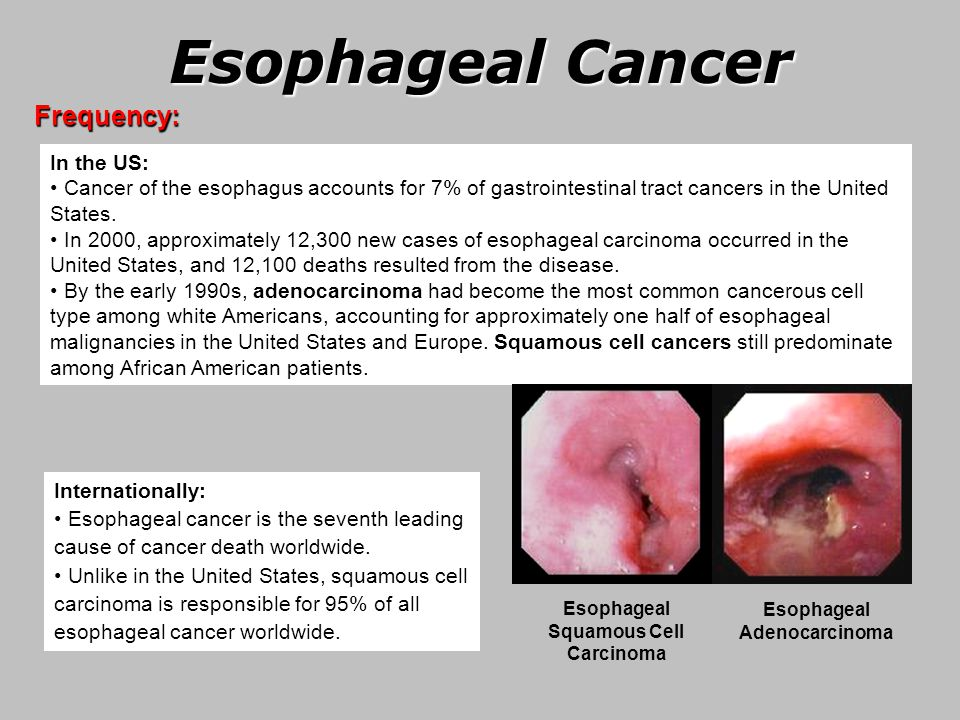 prevention of esophageal squamous cell carcinoma escc Esophageal cancer may be due to either squamous cell carcinoma (escc) or adenocarcinoma (eac) sccs tend to occur closer to the mouth, while adenocarcinomas occur closer to the stomach sccs tend to occur closer to the mouth, while adenocarcinomas occur closer to the stomach.