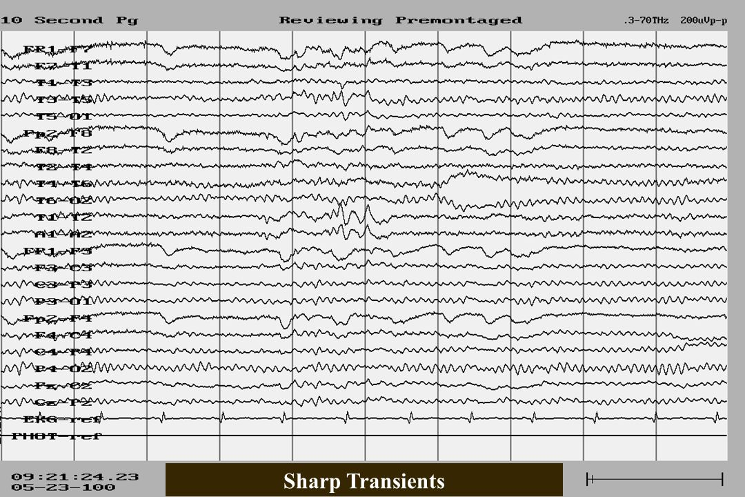 Sharp Transients