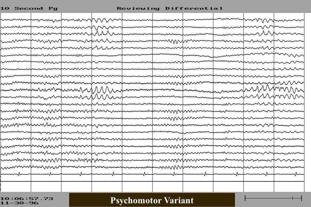 Psychomotor Variant