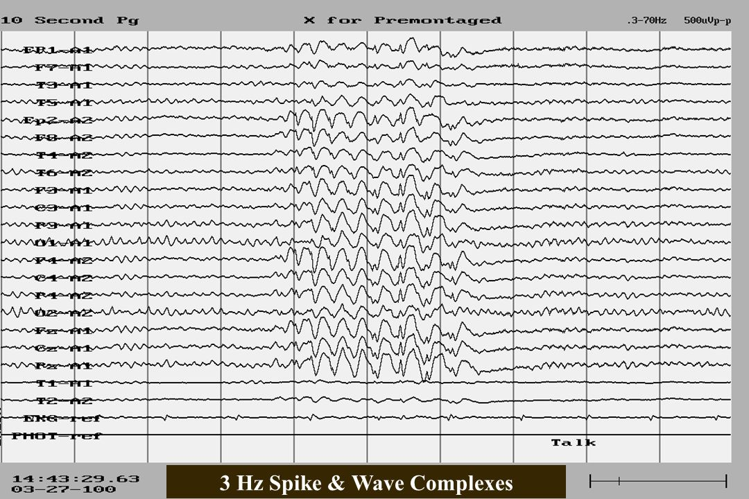 3 Hz Spike & Wave Complexes