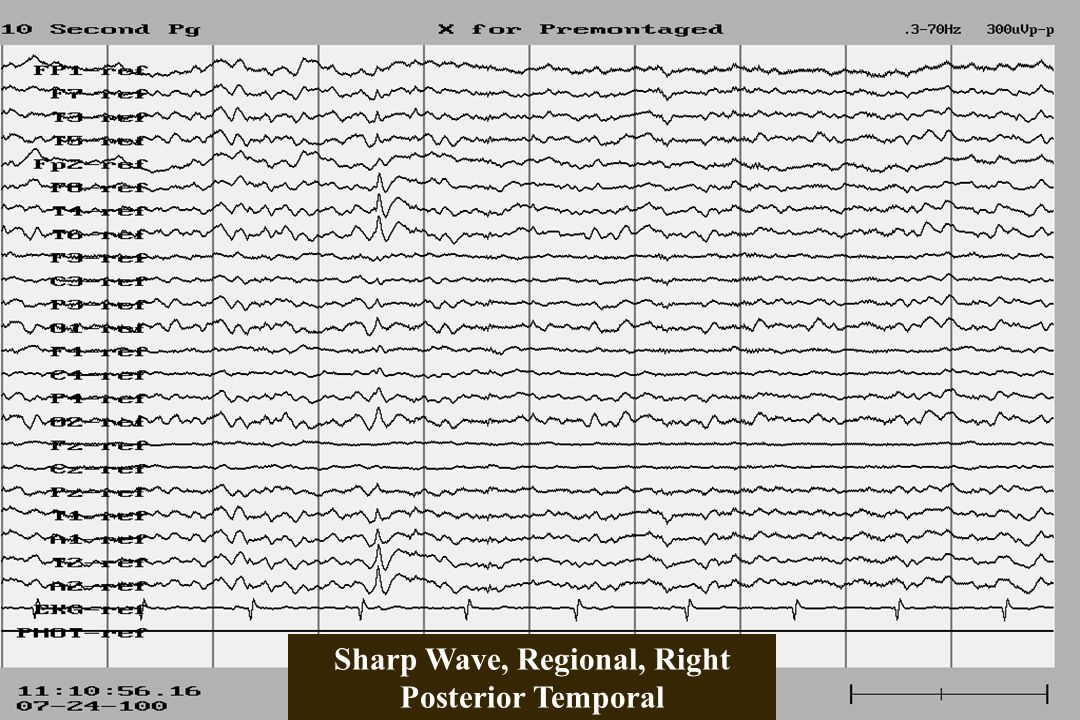 Sharp Wave, Regional, Right Posterior Temporal