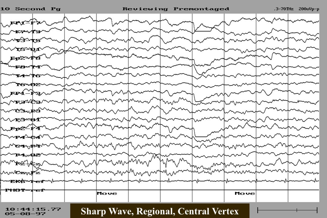 Sharp Wave, Regional, Central Vertex