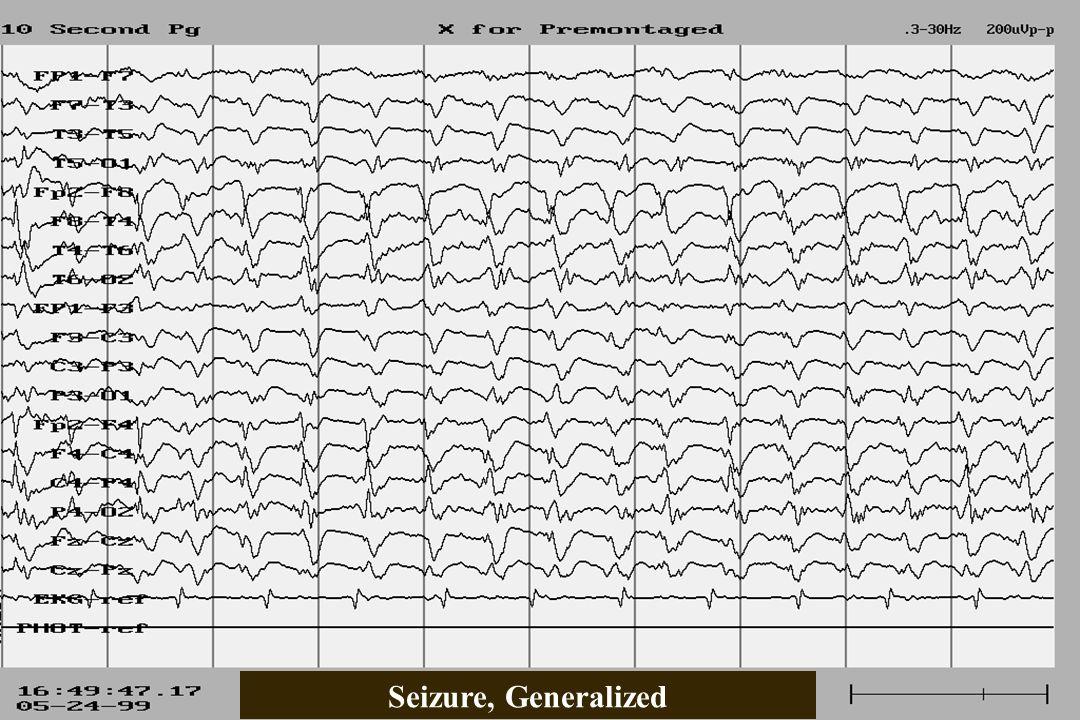 Seizure, Generalized
