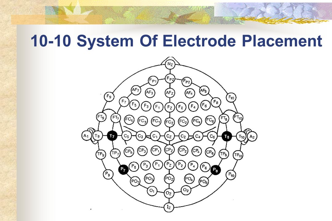 10-10 System Of Electrode Placement