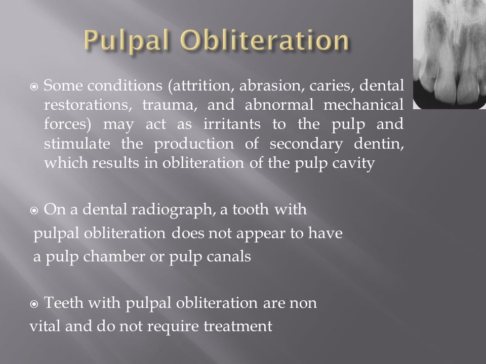 Radiographic Interpretation Of Periodental Disease Ppt
