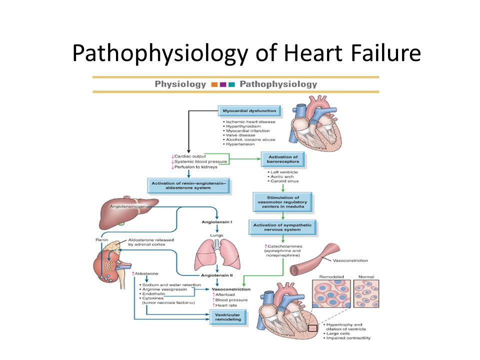 pathophysiology right side heart failure case study Start studying pathophysiology - cardiac learn vocabulary, terms, and more with flashcards, games, and other study tools  and supplies right side of the heart cx.
