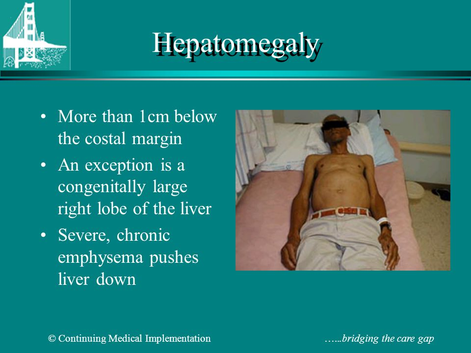 Hepatomegaly More than 1cm below the costal margin