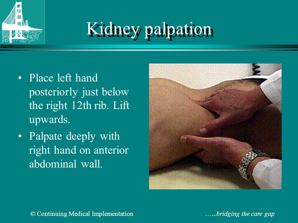 Kidney palpation Place left hand posteriorly just below the right 12th rib.