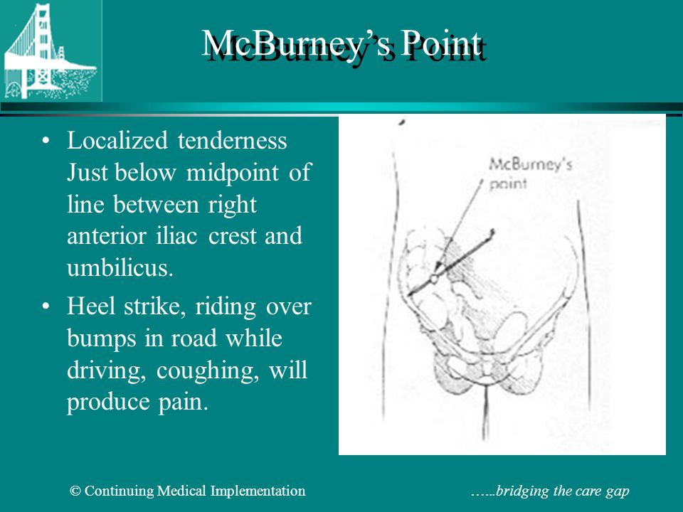 McBurney's Point Localized tenderness Just below midpoint of line between right anterior iliac crest and umbilicus.