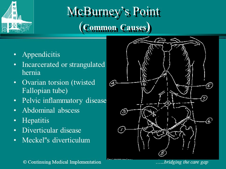 McBurney's Point (Common Causes)