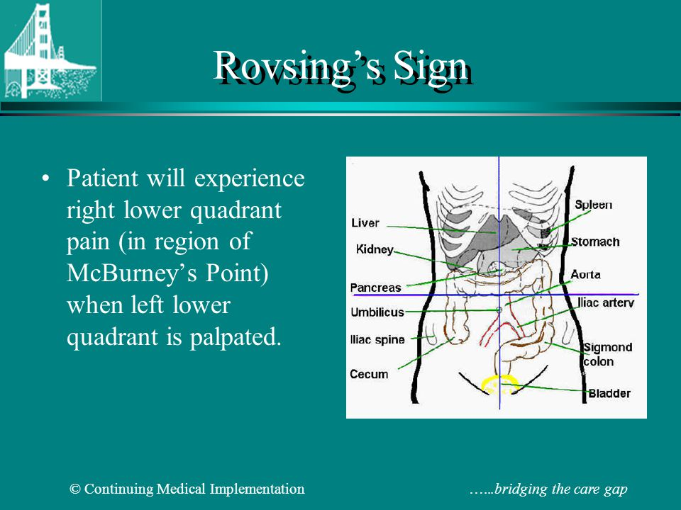 Rovsing's Sign Patient will experience right lower quadrant pain (in region of McBurney's Point) when left lower quadrant is palpated.