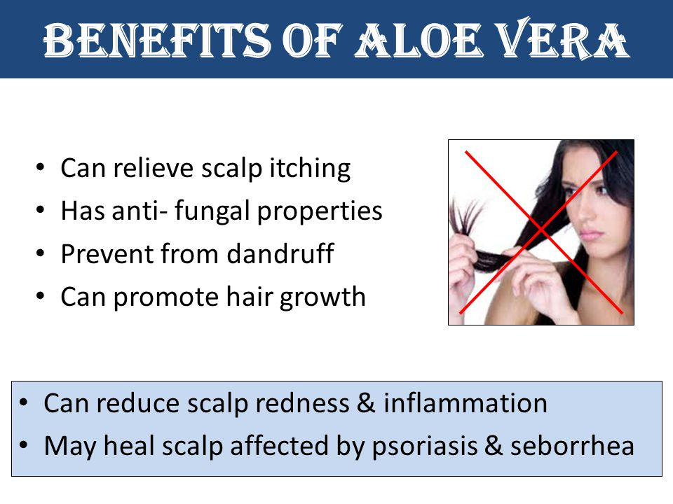 Benefits of Aloe Vera Can relieve scalp itching