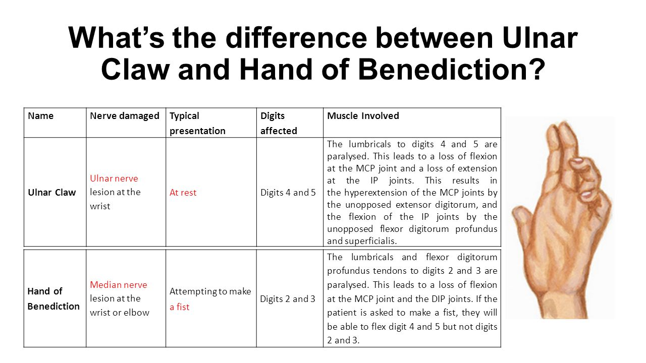 What's the difference between Ulnar Claw and Hand of Benediction
