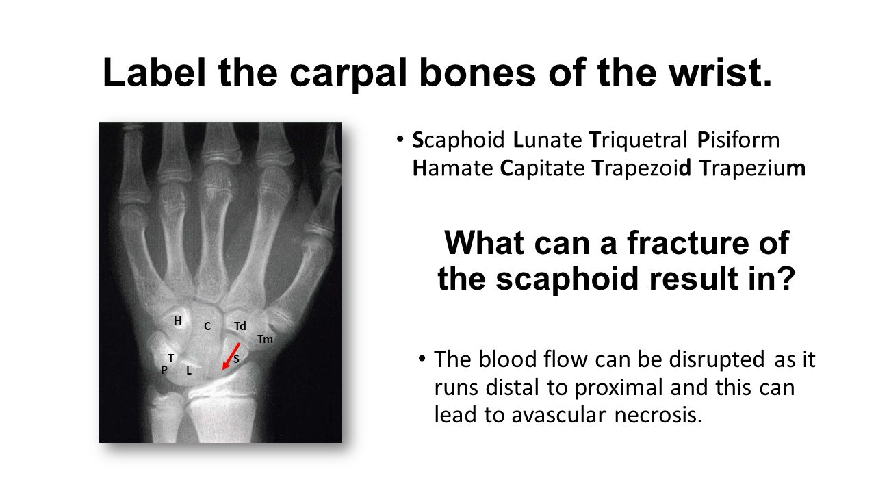 Label the carpal bones of the wrist.