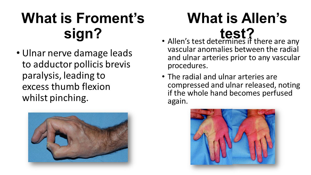 What is Froment's sign What is Allen's test