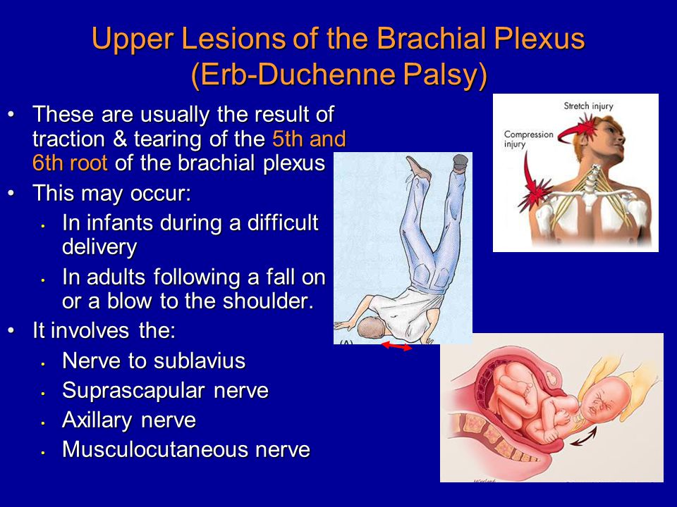 nerve injuries of the upper limb ppt video online download