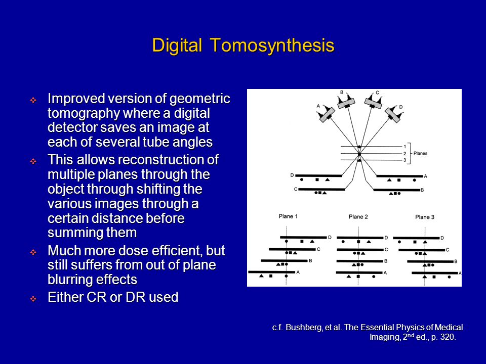 digital tomosynthesis reconstruction Digital tomosynthesis is a three-dimensional (3-d) breast imaging technique based on full-field digital mammography developers of this technology propose that a 3-d reconstruction of the breast will eliminate the problem.