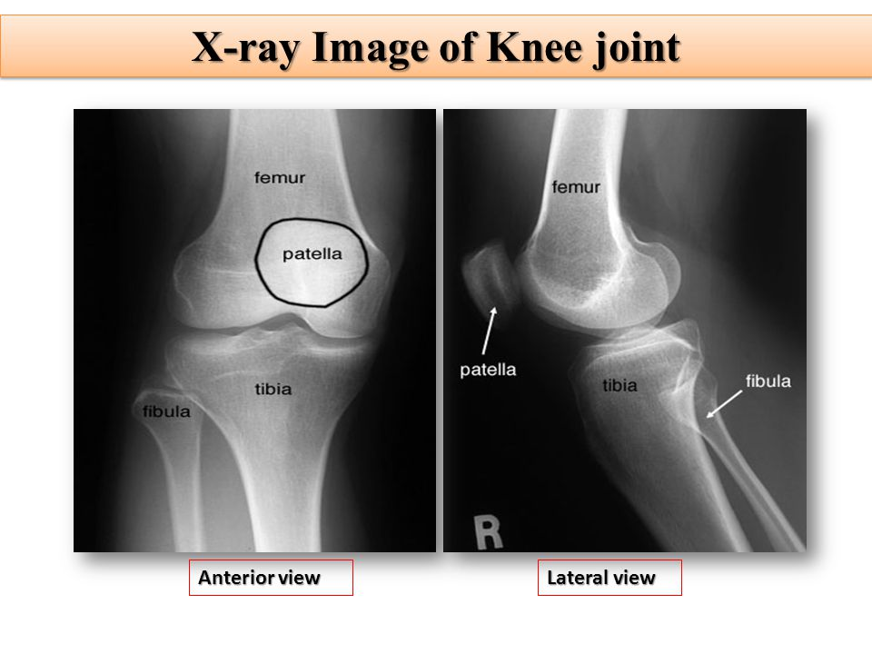 X Ray Image Of Knee Joint on 4 Parts Of A Synovial Joint