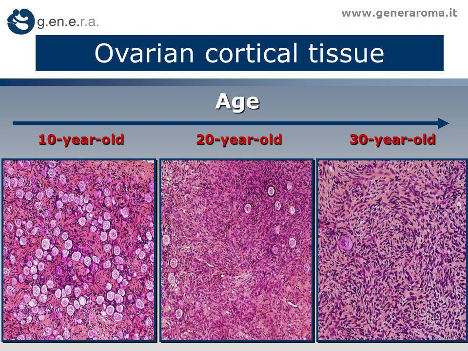Ovarian cortical tissue