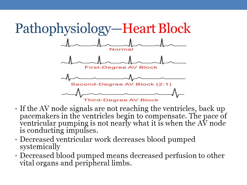 Heart Block Case Study