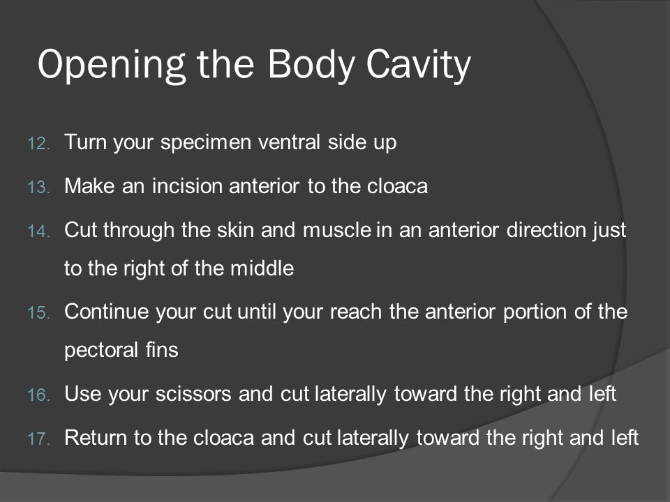Opening the Body Cavity