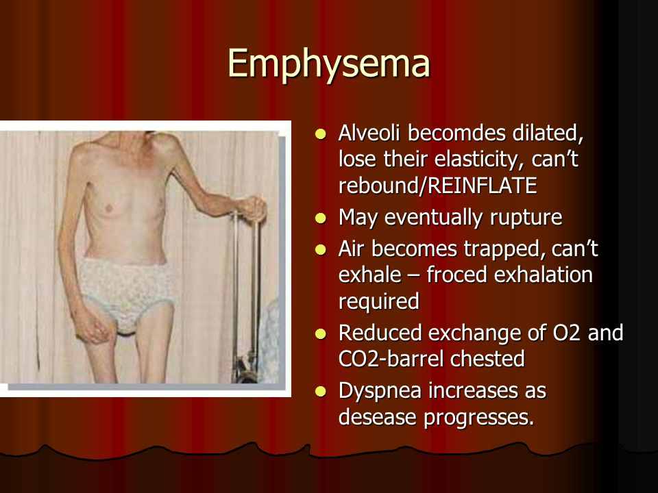 Emphysema Alveoli becomdes dilated, lose their elasticity, can't rebound/REINFLATE. May eventually rupture.