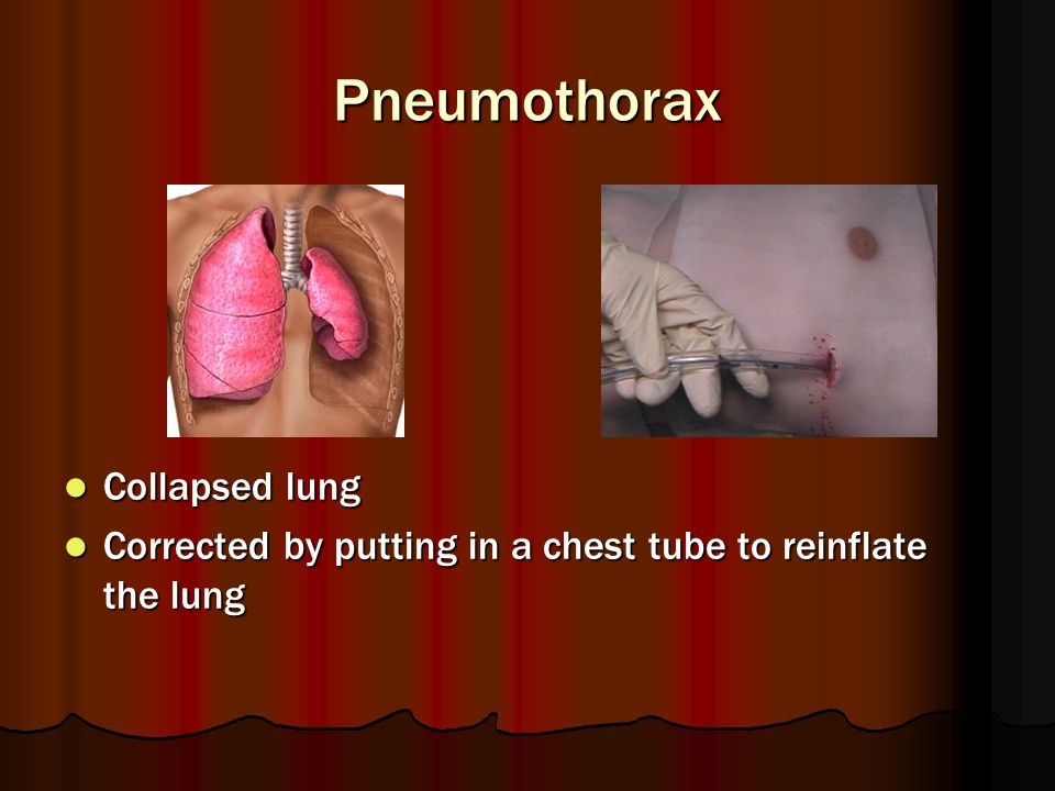 Pneumothorax Collapsed lung