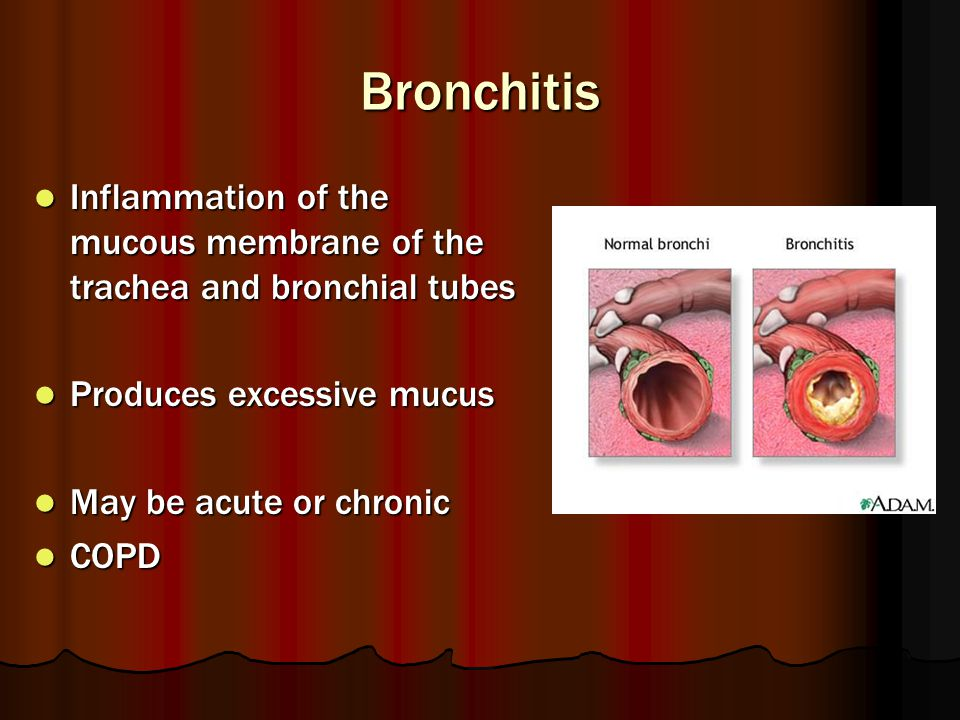 Bronchitis Inflammation of the mucous membrane of the trachea and bronchial tubes. Produces excessive mucus.