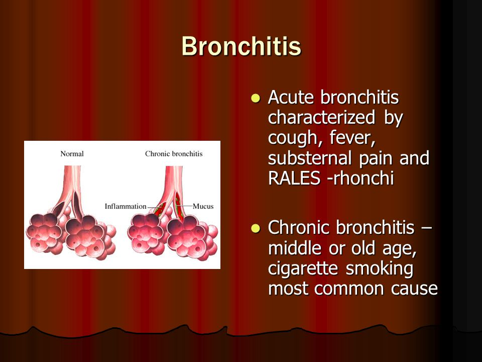Bronchitis Acute bronchitis characterized by cough, fever, substernal pain and RALES -rhonchi.