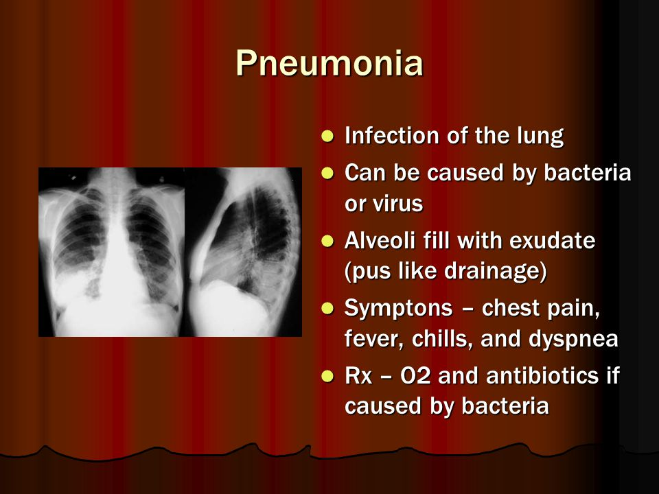 Pneumonia Infection of the lung Can be caused by bacteria or virus