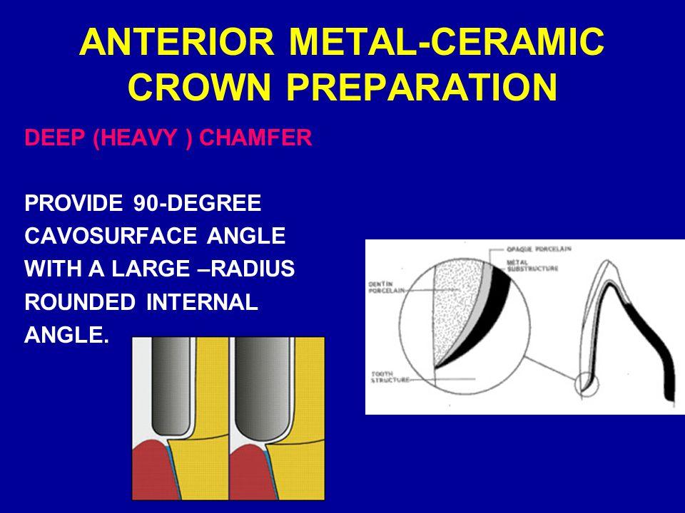 Metal Ceramic Crowns Pp Ppt Video Online Download
