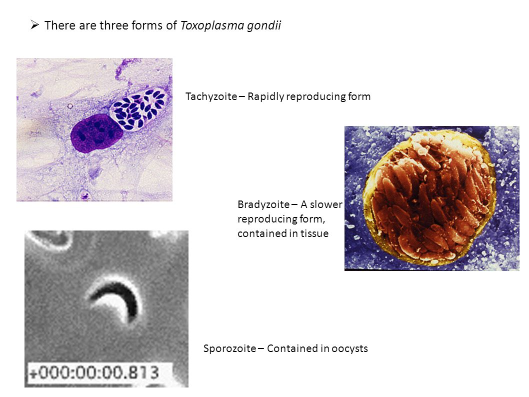 There are three forms of Toxoplasma gondii