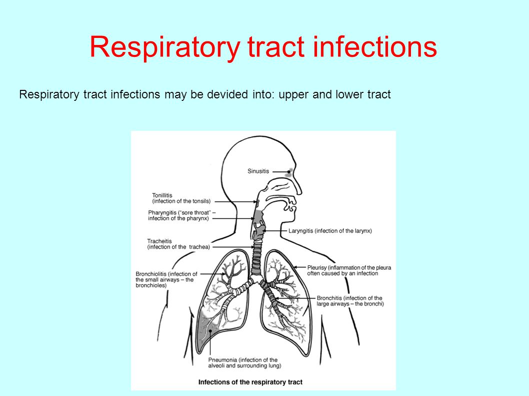 upper respiratory tract infection If any kind of bacteria or some kind of infection can happen to any of the organs,  an infectious process will occur in the upper respiratory tract.