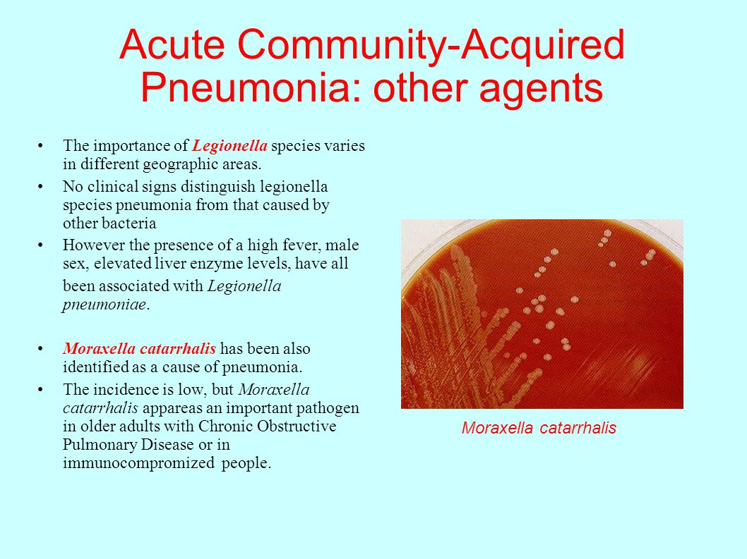 Basic Principles Of Infectious Diseases  Ppt Download. Arizona Kitchen Remodel Team Health Flagstaff. Western Seniors Housing One Piece Filler List. How To Sell Wedding Ring Apple App Developers. John Mcnamara Attorney Pmp Certification Exam. Get A Fast Free Web Browser Student Tap Card. Water Seeping Through Basement Wall. Wireless Light Controller Defense Lawyers P A. Mortgage Requirements For Second Home